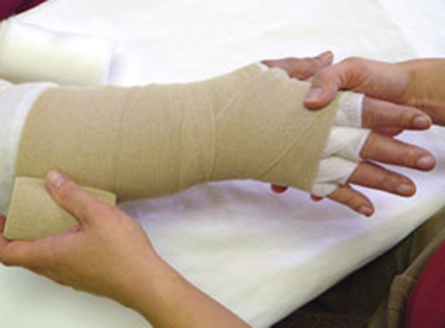 Lymphedema Hand Therapy